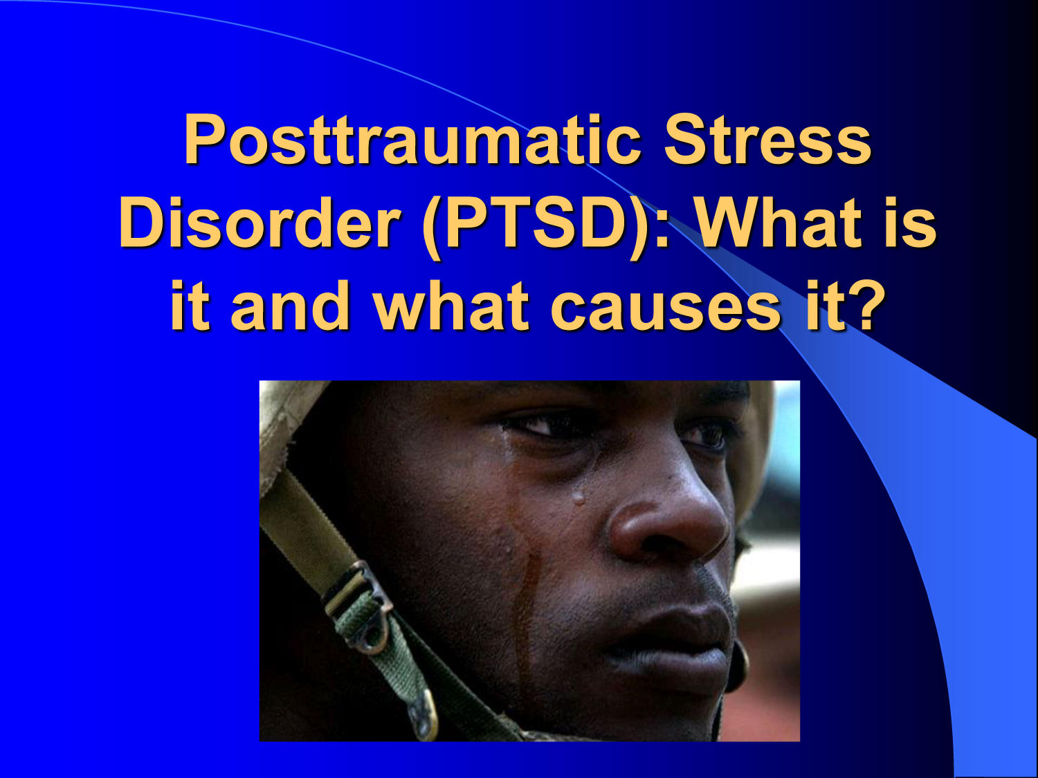 Posttraumatic Stress Disorder (PTSD): What is it and what causes it?                                                                                                      [Sequence #]: 1 of 17