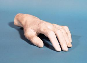 Primary view of object titled 'Cast of the Hand of Frederic Chopin'.
