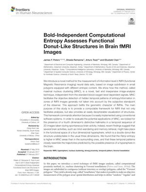 Primary view of object titled 'Bold-Independent Computational Entropy Assesses Functional Donut-Like Structures in Brain fMRI Images'.