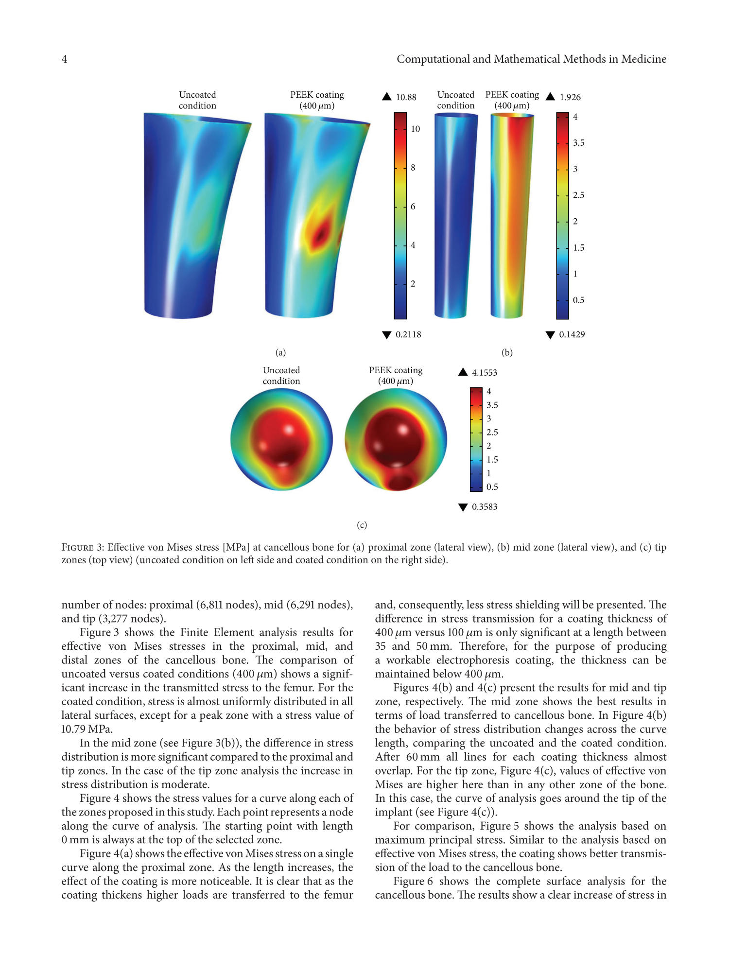 Influence of PEEK Coating on Hip Implant Stress Shielding: A Finite Element Analysis                                                                                                      4